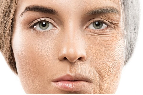 difference between fine lines and wrinkles